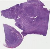Precurser B-cell lymphoblastic leukemia (ovary)) [1343/5]