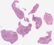 Large B-cell lymphoma, intravascular lymphomatosis type (Prostate) [1349/11]