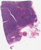 Lymphocyte-rich classical Hodgkin lymphoma, nodular (Lymph node) [1349/2]