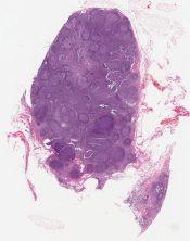 Follicular lymphoma, grade I IIo, with cytoplasmic immunoglobulin inclusions (Lymph node) [1349/3]