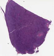 Mantle eel/lymphoma, follicular/nodular (Lymph node) [1349/4]