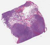8 -ce/1 chranic lymphocytic leukemia/small lymphocytic lymphoma (Lymph node) [1349/5]