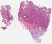 Adrenal cortical carcinoma (Adrenal) [1386/4]