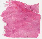 Chondrosarcoma (Bone, femur) [139/10]