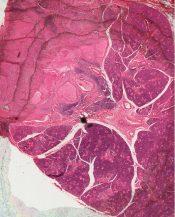Mucoepidermoid carcinoma (Salivary glands) [139/3]
