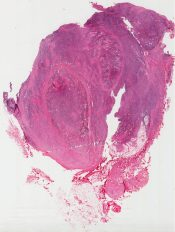 Hodgkin's granuloma (Cervical lymph node)  [1396/1]
