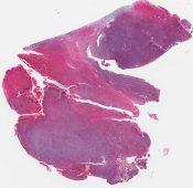 Reticulum cell sarcoma (nasal antrum) [1422/10]