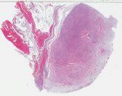Liposarcoma (breast) [1424/3]