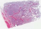 Embryonal rhabdomyosarcoma x-file: Clear cell sarcoma of Enzinger (thigh) [1435/8]