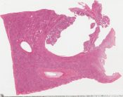 Well differentiated papillary adenocarcinoma, bile duct (liver) [1438/12]