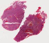 Embyonal hepatoblastoma (liver) [1438/3]