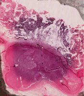 Osteomyelitis (Bone) [144/14]