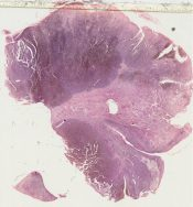 Melanoma (Hemorroidal) [1440/23]