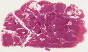 Non-virilizing hypernephroma of ovary (Retroperitoneal tumor) [1448/13]