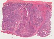 1. Malignant granulosa cell tumor of ovary. 2. Associated endometrial adenocarcinoma Grade I (Ovary) [1448/19]