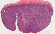 Adenoacanthoma of ovary, origin in endometriosis (Ovary) [1448/25]