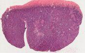 Adenoacanthoma of ovary, origin in endometriosis (Ovary) [1448/25]