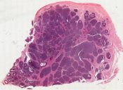 Carcinoma, originating in mesonephric remnants (predominantly mesothelioma) (Uterine cervix) [1448/3]