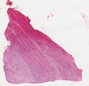 unknown (Pectoralis muscle) [1449/8]