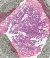 Cystadenoma (Breast) [145/12]