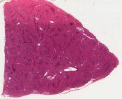 Focal nodular hyperplasia (Mass in liver) [1450/1]