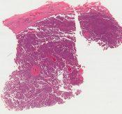 papillary duct adenoma (islet cell type) (Abdominal tumor) [1450/21]