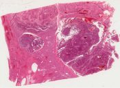 liver cell carcinoma in infancy (Liver) [1450/6]