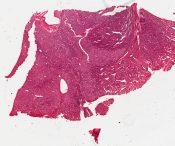 Infantile hemangio-endothelioma (Liver ) [1450/7]
