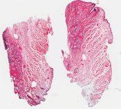 Precancerous and cancerous melanosis () [1451/10]