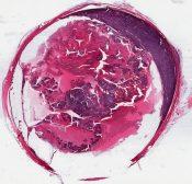 Retinoblastoma with extrabulbar extension (Right eyeball) [1451/13]