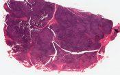 Lymphocytic lymphoma of lacrimal gland (Right orbit) [1451/21]
