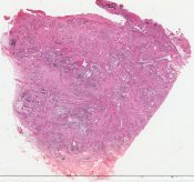 Muco-epidermoid of inner canthus probably arising from accessory lacrimal gland (Contents of right orbit inbcluding the eyeball and eyelids, an irregular 5 x 4.5 x 3 cm piece of bone, and portions of muscles) [1451/25]