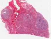 Sympathicoblastoma or neuroblastoma (Left adrenal tumor) [1452/13]