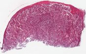 Papillary adenocarcinoma (Thyroid and cervical lymph node) [1452/9]