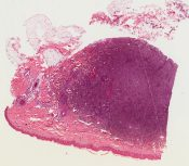 Sclerosing hemangioma (Subcutaneous tissue of the left knee) [1454/7]