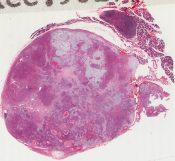 Mixed tumor of salivary gland (Oral cavity) [1456/21]