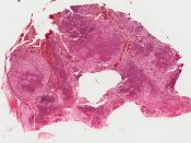 Adrenal cortical adenoma with Cushing's syndrome (Right adrenal) [1457/23]