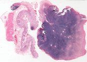 Lymphocytic lymphosarcoma (Sigmoid colon) [1459/10]