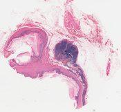 Teratoma, teratocarcinoma () [1462/2]