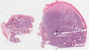 Non neoplastic tumors (Testis) [1462/9]