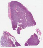 Nasal plasmacytoma - localized manifestation of plasma cell myeloma () [1464/14]