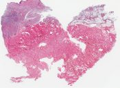 Transitional cloacogenic carcinoma (basaloid) of the anus () [1465/20]