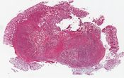 Carcinoid of the rectum (Schistosomiasis in one set of slides) () [1465/25]