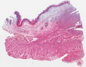 Granular cell myoblastoma of the esophagus () [1465/8]