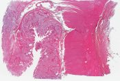 Diffuse nodular hyperplasia of Brunner's glands () [1465/9]