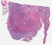 Malignant eccrine spiradenoma (Left posterior cervical chain) [1466/13]
