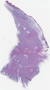 Dermatofibrosarcoma protuberans (Axilla) [1466/15]