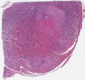 Sinus histiocytosis with massive lymphadenopathy (Cervical lymph node) [1467/17]