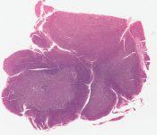 Burkitt's tumor (Tumor masses on peritoneal surfaces?) [1467/22]