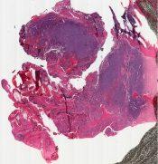 Kimmelstiel-Wilson's disease (Kidney) [147/4]